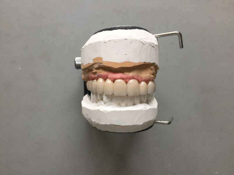 Réalisation Prothèse dentaire 24 à Meusnes | Ceram Centre