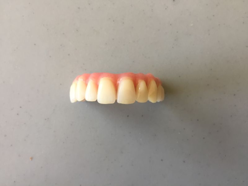 Réalisation Prothèse dentaire 13 à Meusnes | Ceram Centre
