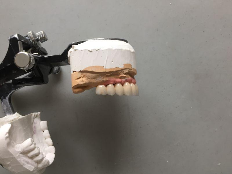 Réalisation Prothèse dentaire 22 à Meusnes | Ceram Centre