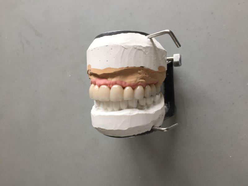 Réalisation Prothèse dentaire 21 à Meusnes | Ceram Centre