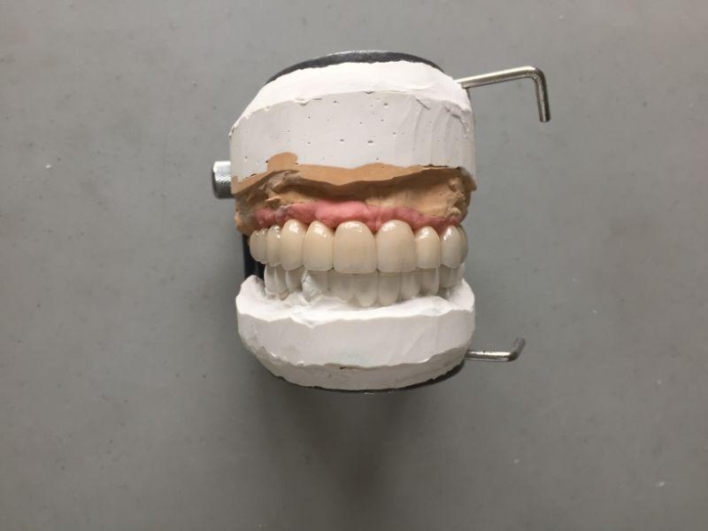 Réalisation Prothèse dentaire 20 à Meusnes | Ceram Centre