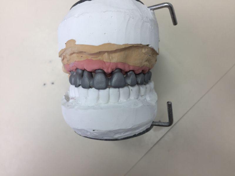 Réalisation Prothèse dentaire 18 à Meusnes | Ceram Centre