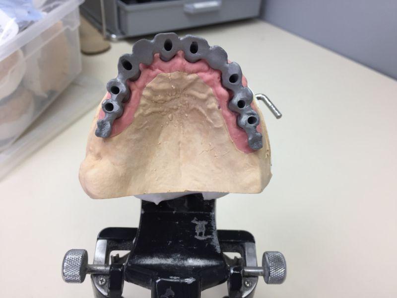 Réalisation Prothèse dentaire 17 à Meusnes | Ceram Centre