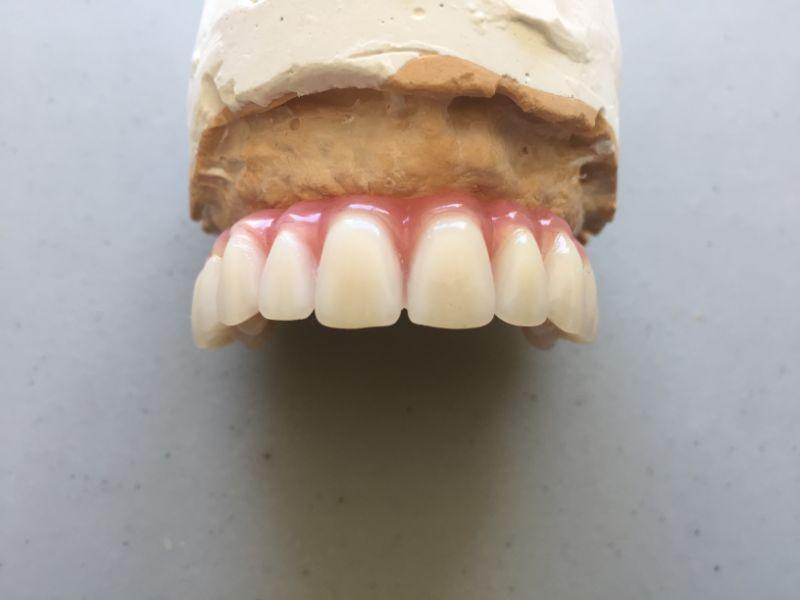 Réalisation Prothèse dentaire 16 à Meusnes | Ceram Centre